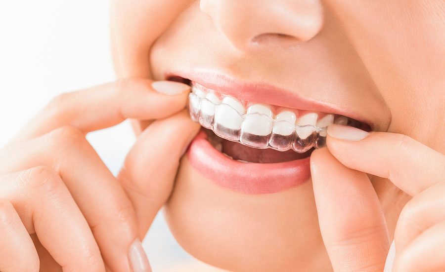 10 Reasons Why We Love Invisalign