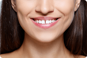 Charleston Answers: Can Braces Really Fix Gaps in Teeth?